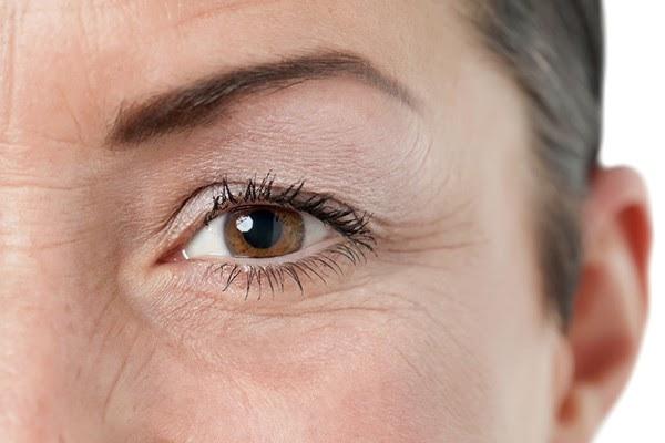 """Nếp nhăn vùng mắt """"tố giác"""" tuổi tác của chị em, đồng khiến khiến các chị em trông già hơn tuổi thật."""