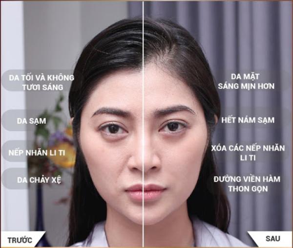 Diễn viên Thanh Trúc trước & sau khi sử dụng công nghệ trẻ hóa da Thermage FLX