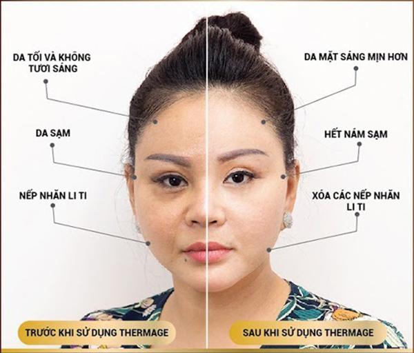 Nghệ sĩ Lê Giang & hai nửa mặt hoàn toàn khác biệt sau khi sử dụng công nghệ trẻ hóa da Thermage FLX.