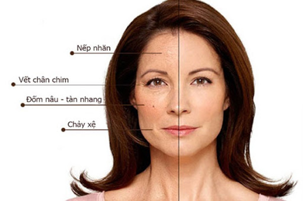 Hiệu quả trẻ hóa da bằng công nghệ HIFU sẽ dần dần được thiết lập trong 6 - 9 tháng
