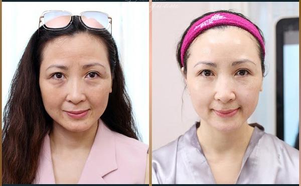 Diễn viên Khánh Huyền trước & sau khi điều trị trẻ hóa da với công nghệ Thermage FLX
