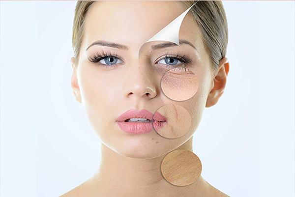 Trẻ hóa da bằng công nghệ IPL có thể khắc phục được rất nhiều các vấn đề về lão hóa da