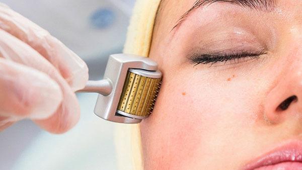 Lăn kim sẽ tạo ra các tổn thương vi điểm kích thích cơ thể sản sinh collagen tái tạo làn da mới và xoà mờ các vết thâm sẹo.